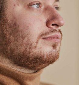 perawatan wajah berjerawat dengan shineskin