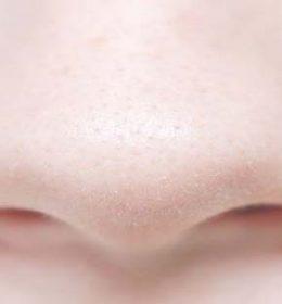 komedo putih di hidung
